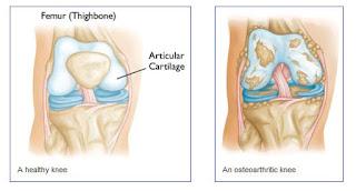 Obat Herbal Osteoarthritis Lutut