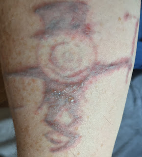 Badly blistered tatoo from picosure