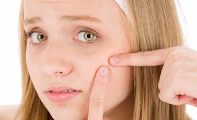Terapi dapat hilangkan jerawat