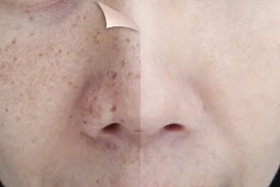 How to Get Rid of Black Spots on The Face
