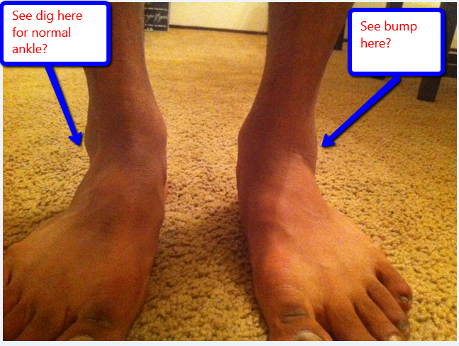 RunningAHEAD - Topic: Ankle roll and swelling