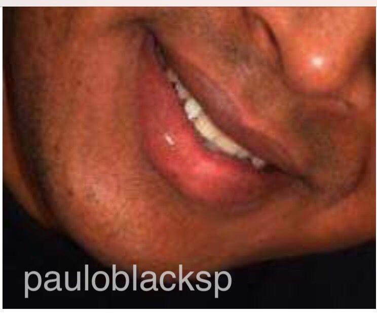 pauloblacksp@hotmail.com