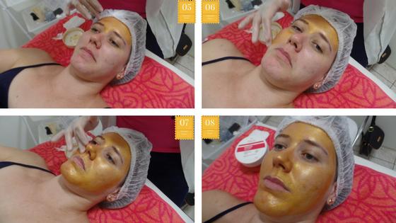 máscara de ouro da Adcos sendo apllicada