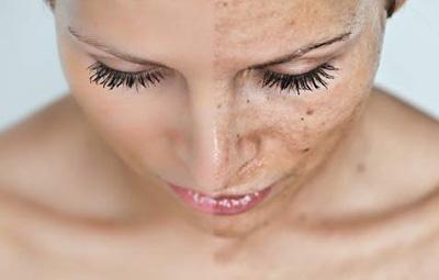 Manchas na Pele,doenças,cuidados,tratamentos,beleza