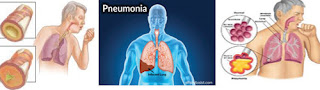 Bronkitis | Pneumonia | TBC