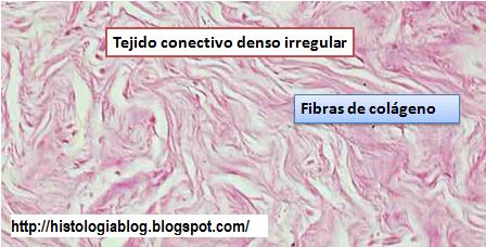 Tejido de mama glandular denso