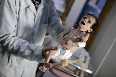 n Syria region under regime siege, children die of hunger