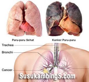 cara mengobati penyakit kanker paru-paru