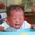 Người đầy vẩy ngứa như da trăn, bé gái 16 tháng tuổi bị bố mẹ bỏ rơi, không có tiền cứu chữa
