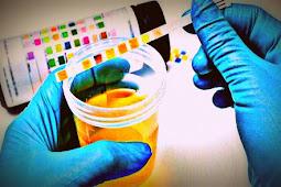 BNNK Mimika Minta Penyediaan Laboratorium Forensik Sampel Narkoba