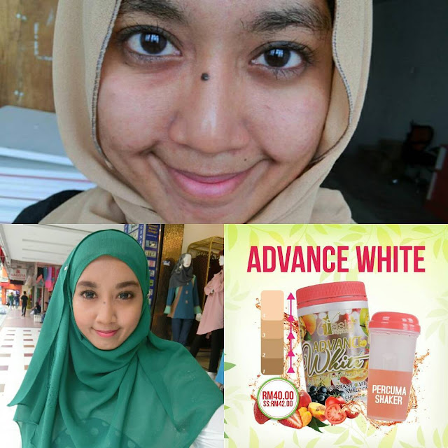 Testimoni Advance White V'asia