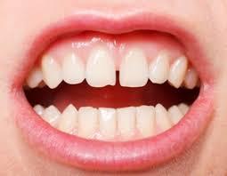 Hàn răng thẩm mỹ đóng kẽ răng thưa