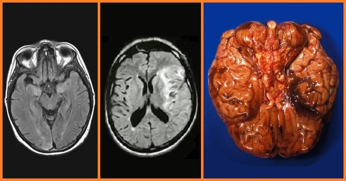 Beyin İltihabı (ENSEFALİT)