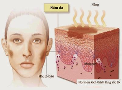 cách trị nám da mặt từ thiên nhiên