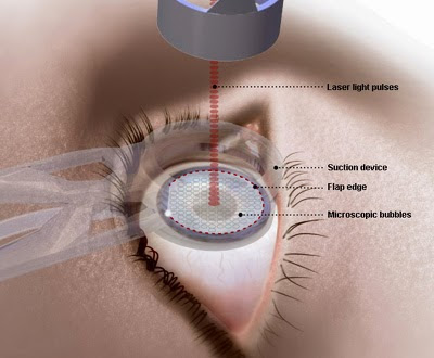 How Lasik Surgery Works