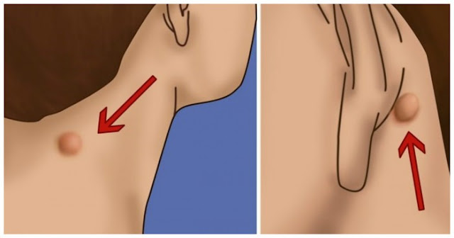 Do You Have a Lump on Your Neck, Back, or Behind Your Ear? This Is What It Means!