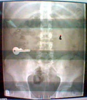 Art Sci Gulp Swallowed Objects Revealed By X Rays
