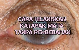 cara hilangkan katarak mata