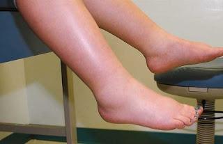 Bacaklarda Ödem Tedavisi