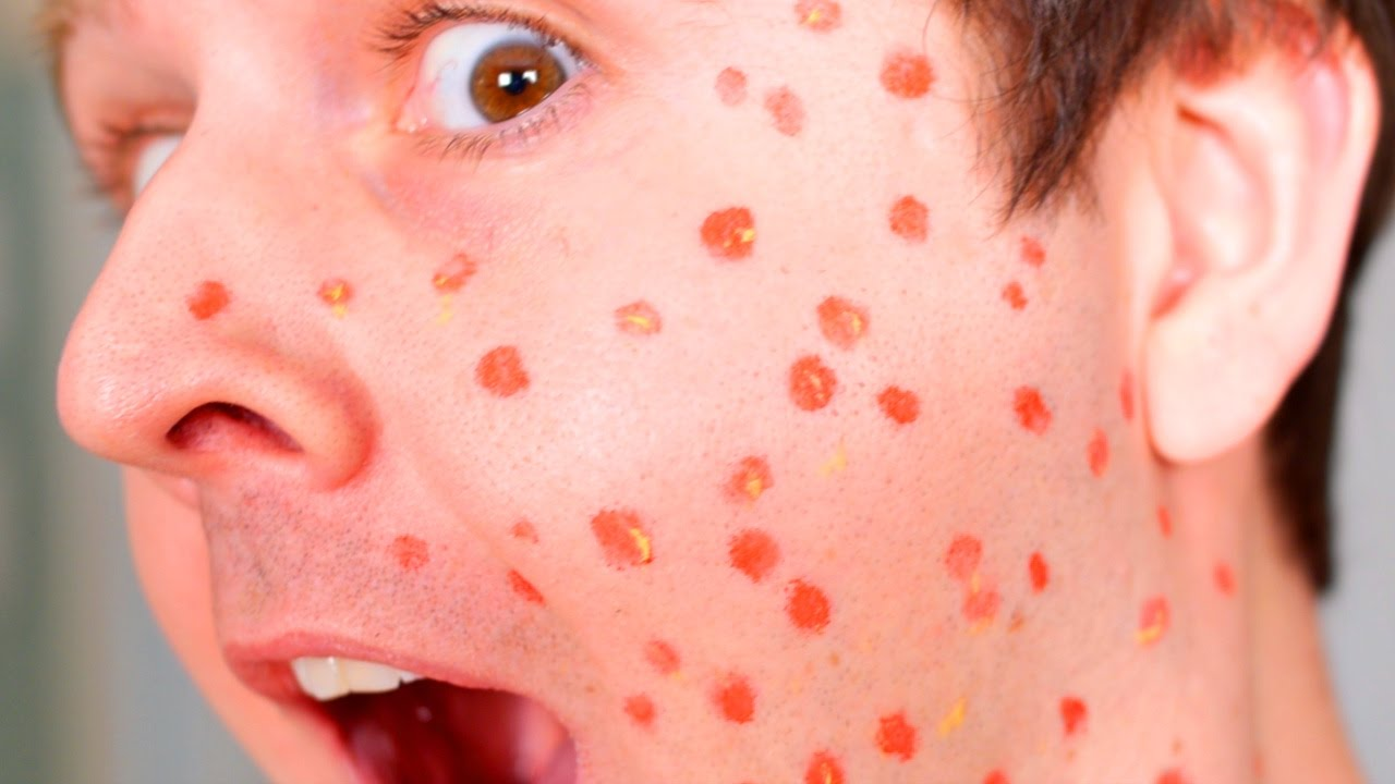 Chicken pox ka ilaj (chicken pox treatment)