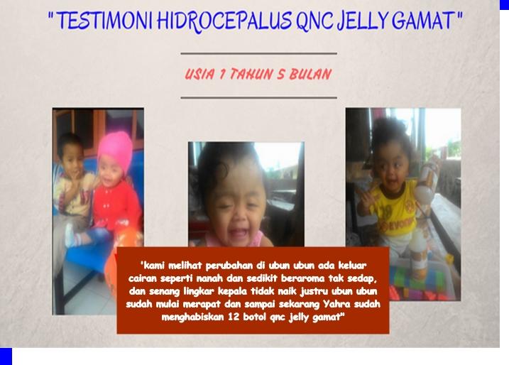 Hasil gambar untuk testimoni pengguna QNC UNTUK PENYAKIt meningitis
