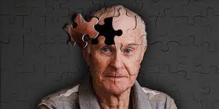 rawatan penyakit alzheimer
