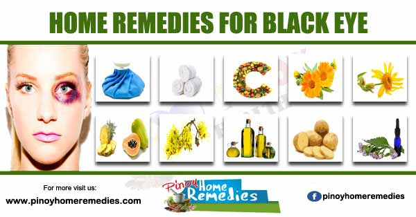Home Remedies For Black Eye
