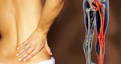 8 Best Natural Treatments For Sciatic Nerve Pain