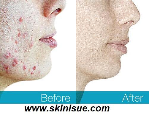 Acne Best Treatment