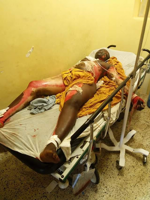 Photos: Young Liberian woman burnt to death by her boyfriend for breaking up with him