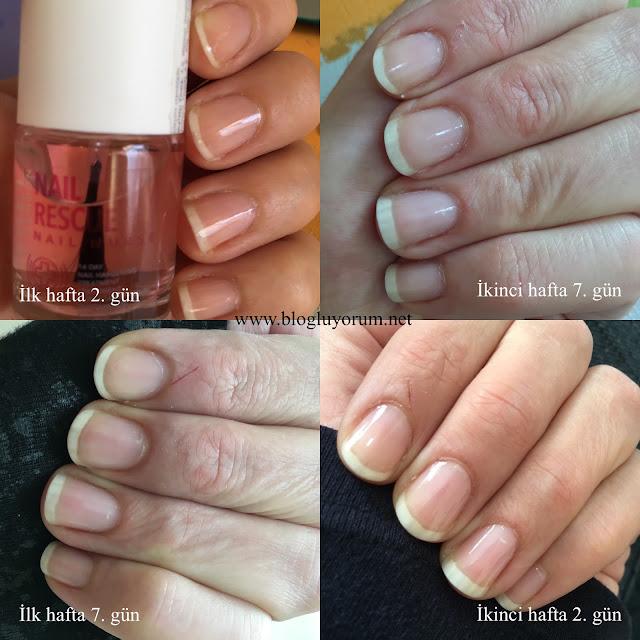 Rimmel London nail rescue nail nurse 14 günlük tırnak bakımı swatch