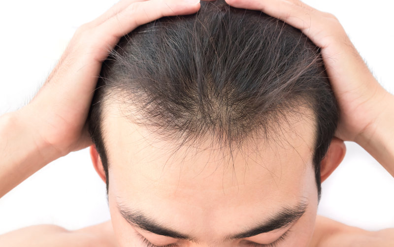 How To Stop A Receding Hairline Hair Loss Review Centre