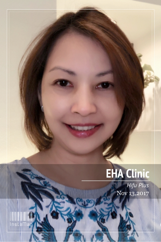 luxury lifestyle influencer eha clinic hifu plus result