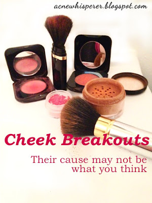 Cheek breakouts.  Their cause may not be what you think...