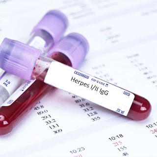 Herpes IgG test result