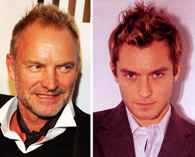 The Right Haircut For Men With Very High Or Receding Hairlines