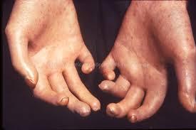 Image result for scleroderma heart
