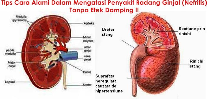 Obat Tradisional Radang Ginjal (Nefritis)
