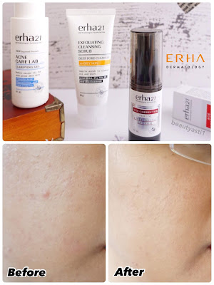 review-produk-perawatan-kulit-dari-erha-dermatology.jpg