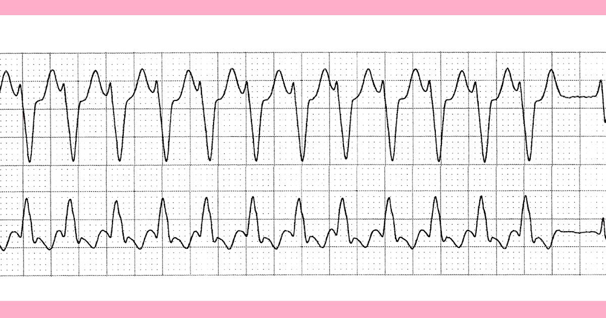 Hyperthyroidism - Life in the FastLane ECG Library |Ekg Examples