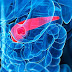 Any Treatment Available for 4th Stage of Pancreatic Cancer in India?