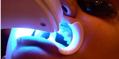 Blanqueamiento dentales con láser y con luz LED