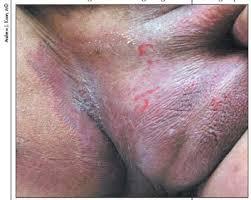 Foto Cara atasi gatal jamur pada batang kemaluan pria dan buah zakar tanpa rasa sakit dan perih