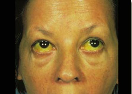 18 Akibat Penyakit Hepatitis B Paling Berbahaya dan Mematikan