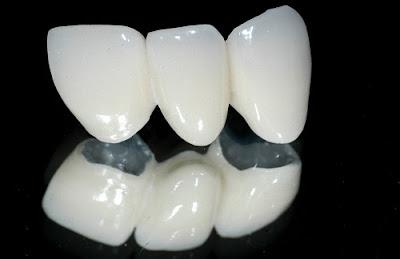 làm răng sứ có đắt không -4