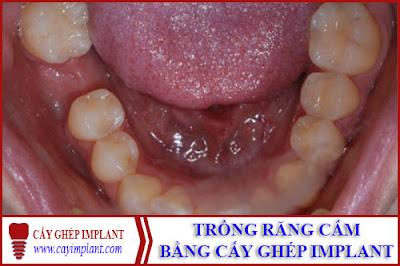trồng răng cấm bằng phương pháp cấy ghép Implant -1