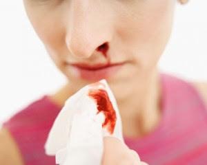 Pencegahan Leukemia | Info Kesehatan
