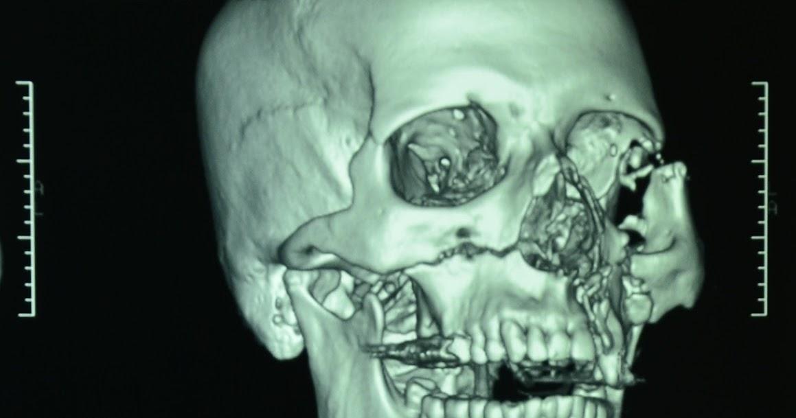 Facial fracture surgery