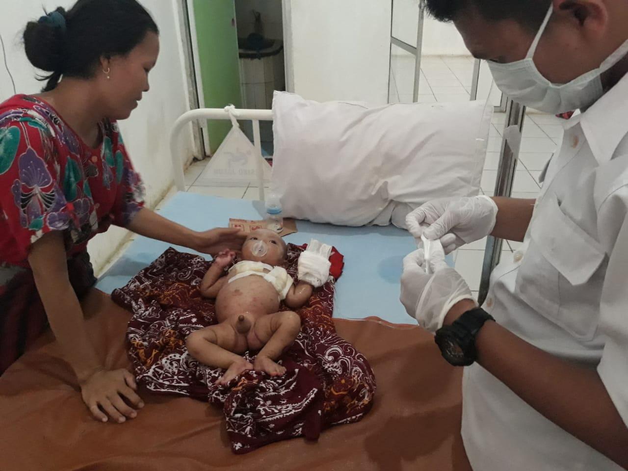 Ilham Sanjaya Hasibuan dirawat intensif medis