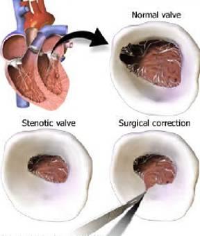 commissurotomy mitral stenosis komisurotomi